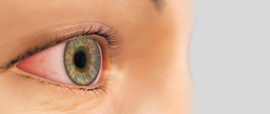 varför rinner ögonen